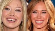 Le faccette estetiche negli elementi dentali anteriori