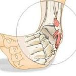 L'instabilità cronica di caviglia
