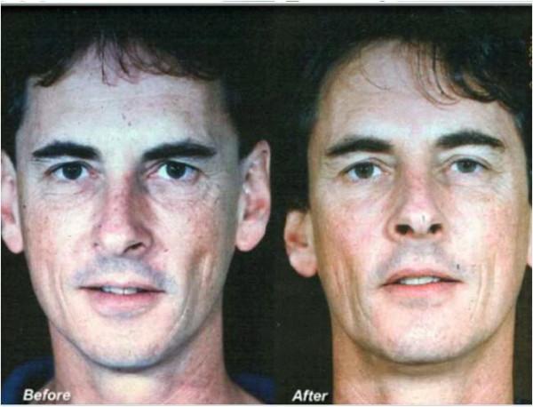 Prima e dopo il trattamento