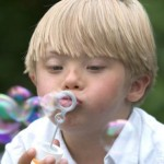 """Sindrome di Down: """"prevenire i danni al DNA"""""""